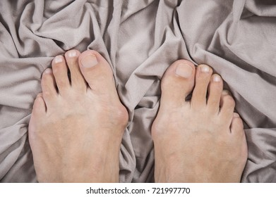 Hallux valgus, bunion in a leg on a beige soft background