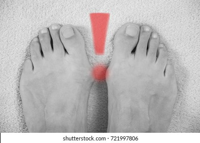 Hallux valgus, bunion in a leg on a gray soft background, with an exclamation point depicted on them. Black and white photogrphy