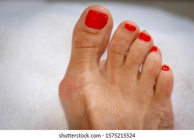 Hallux valgus, bunion on the right  foot.