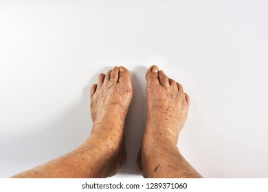"""Hallux valgus"" ""Bunion"" selective focus wrinkled and freckled on feet skin of eldery asian women on white background.Body's deteriorated.Beauty problems of older women.eldery health concept."
