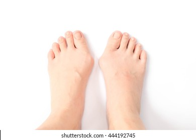 Hallux valgus, feet isolated on white. Hallux valgus is a medical term for bunion foot / bunionette. Hallox Valgus is normally caused by genetic and/or wearing too tight shoes & high heels.