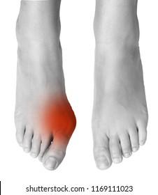 Hallux valgus on big toe surgical removal