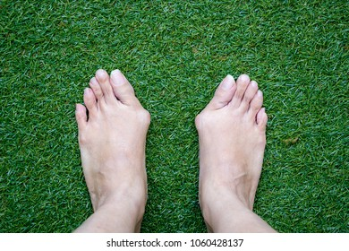 Hallux valgus, woman legs barefoot with bunions stand on green grass backgroud