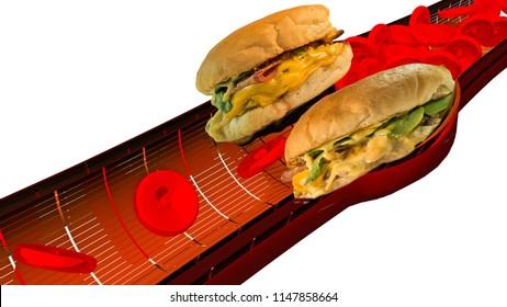 hamburger artery cholesterol blood heart attack