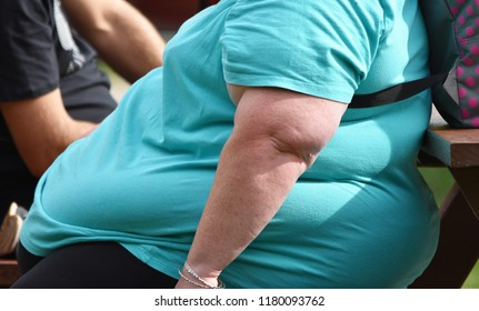 Hampshire, UK Sept 15 2018. A morbidly obese woman sits on a bench in a park. According to the World Health Organistion 27.8% of the UK's population are obese and the UK is Europe's 3rd fattest nation