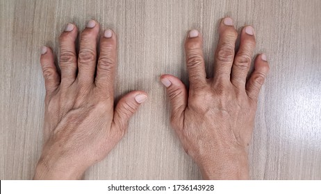 Hand anatomy show deformity of degenerative osteoarthritis disease(OA disorder). Patient has finger joint arthritis,pain and stiffness problem. Medical diagnosis technology and examination concept.