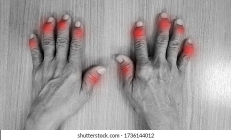 Hand anatomy show deformity of degenerative osteoarthritis disease(OA disorder). Patient has finger joint arthritis problem. Red highlight on painful area. Medical diagnosis and treatment concept.