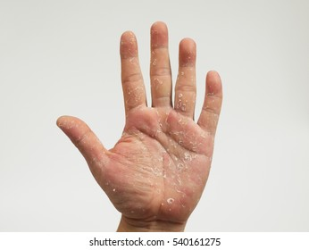 Hand blister or allergic reaction on a hand. Psoriasis, Dermatitis, skin. isolated on white Background