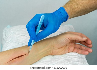 Hand with blue medical glove holding a scalpel making an incision on an arm. Open wound surgery. Close up horizontal view.