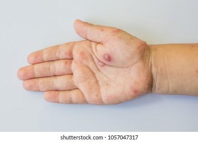Hand with Chickenpox virus.