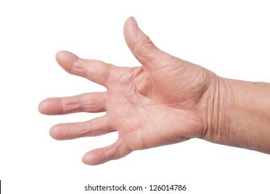 Hand Deformed From Rheumatoid Arthritis isolated on white
