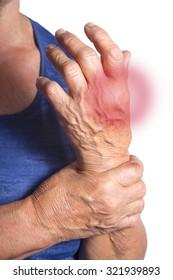 Hand Deformed From Rheumatoid Arthritis. Studio shot. Pain condition. Isolated on white