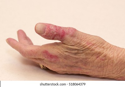 Hand Dermatitis Eczema in and Elderly Women