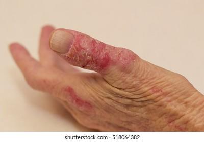 Hand Dermatitis Eczema in and Elderly Women