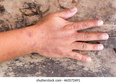 Hand dermatitis, Eczema on hand