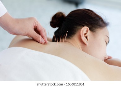 hand of doctor performing acupuncture therapy . Asian female undergoing acupuncture treatment with a line of fine needles inserted into the her body skin in clinic hospital
