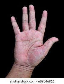 hand with eczema isolated on black background