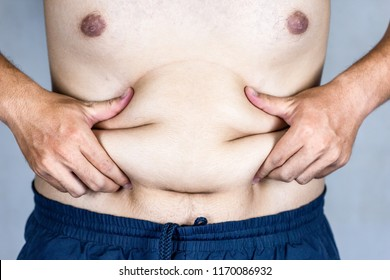Hand of fat man check obesity of body with catch his belly.Weight Loss for whose overweight concept.