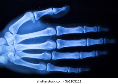Hand, fingers and thumb hospital x-ray scan test results for joint pain and injury in orthopedic medicine and traumatology clinic.