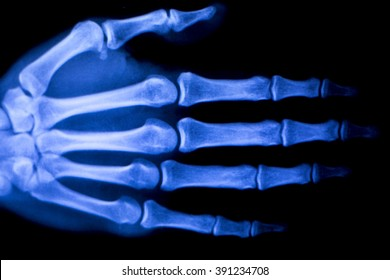 Hand, fingers, thumb and wrist injury orthopedic Traumatology medical x-ray test scan image.
