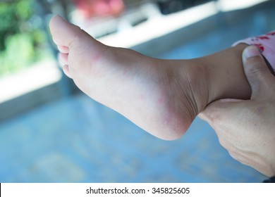 Hand foot mouth disease in child