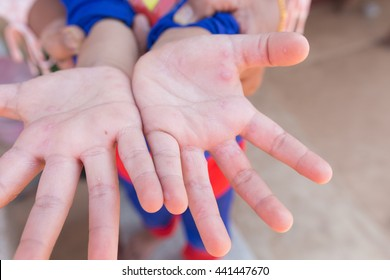 Hand foot and mouth disease in child