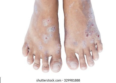 Hand foot mouth syndrome.