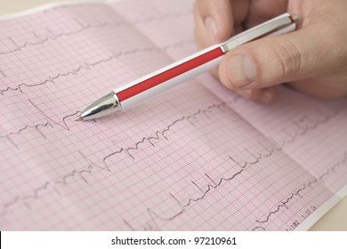 hand holding pen indicates  beats in ECG