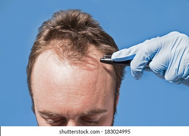 A hand with a latex glove on points to a man's hairline.