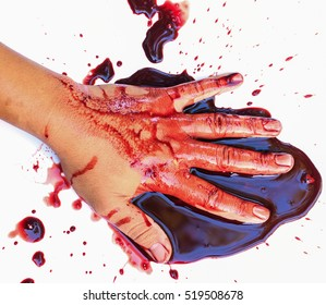 Hand of man injured wound from accident and blood bleeding on white background , insurance concept