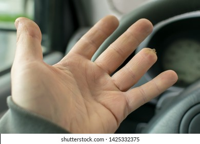 Hand of a man with a missing finger phalanx on the background of the steering wheel and dashboard of the car
