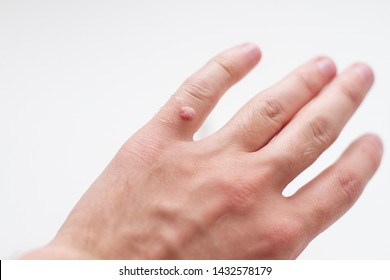 hand of a man with a wart