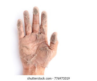 the hand with many dust, fur and hair, about allergy or Cause of disease concept