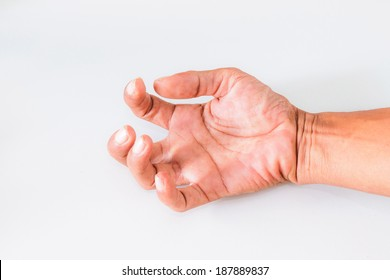 Hand of men with symptoms of spasticity.