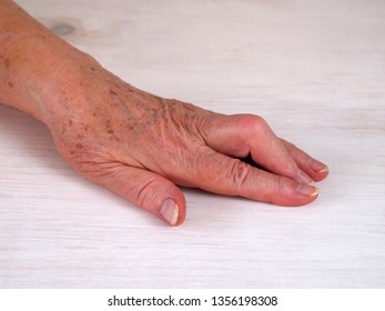 Hand with middle finger tendon rupture, PIP joint contracture