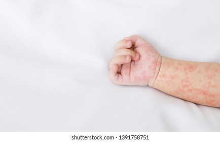 Hand of newborn baby with measles rash on white sheet, closeup, panorama with free space