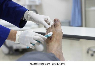hand of nurse dressing wound for patient's foot