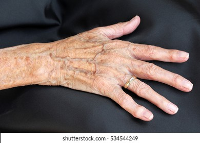 The hand of an old woman. The painful hand of an old woman. An old woman has pain in her hands.
