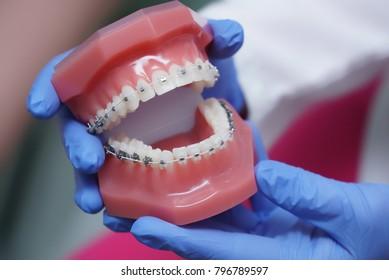 In hand on dentist orthodontics braces