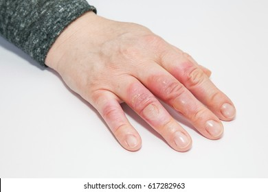 Hand on white with second degree burns on the fingers