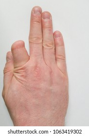 Hand with a partial amputated finger