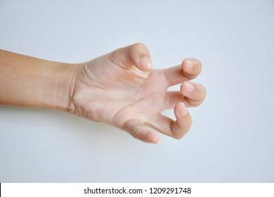 hand of patient is focal dystonia