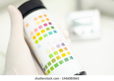 Hand scientist holding color level urine strip in laboratory.