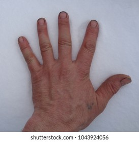 hand snow fingers different sides