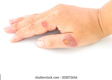Hand a teenager with blisters due to burns