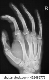 Hand, thumb, wrist and fingers xray traumatology and orthopedics test medical scan used to diagnose sports injuries.