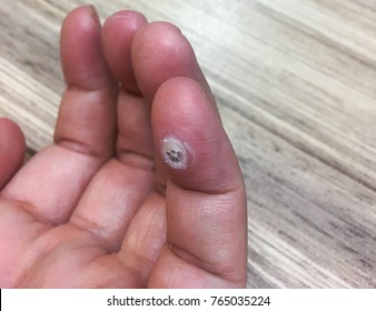 hand with wart,wart on finger