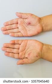 Hand white Chickenpox.