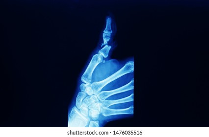 A hand and wrist x-ray showing fracture and displacement of thumb proximal phalanx or digit. The patient need surgical fixation and reconstruction.