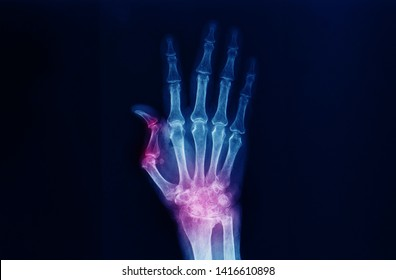 A hand and wrist x-ray showing severe arthritis of the wrist or carpus and Boutonniere deformity of the thumb. The patient has advanced rheumatoid arthritis. Dark background.